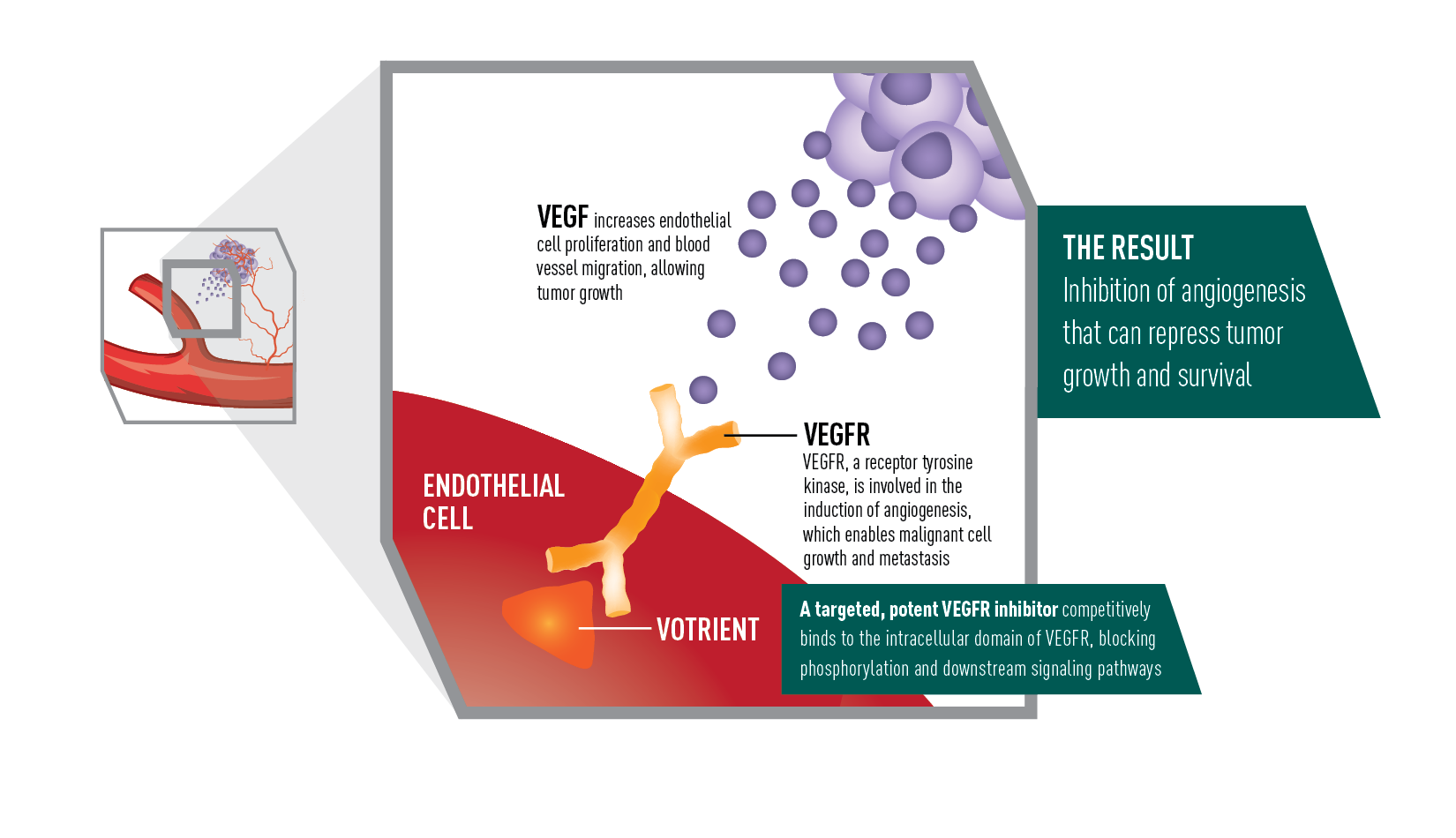 How Votrient Works In Advanced Renal Cell Carcinoma